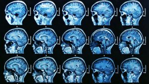 Escaner de resonancia magnetica del cerebro