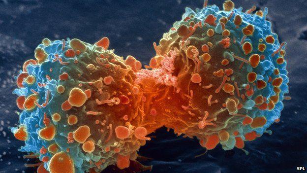 curar-cancer-celulas-cancer
